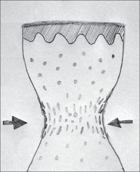 Figure 4: Schematic representation of the histopathologic picture of crush artifact caused by holding the biopsy tissue with forceps