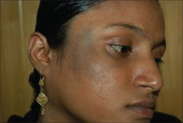 Figure 1: Patient with nevus of Ota on right maxillary distribution before treatment