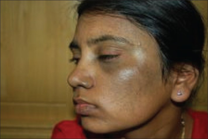 Figure 4: Patient with bilateral nevus of Ota after 6 sessions
