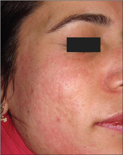 Figure 4: Post-acne scars after dermaroller treatment