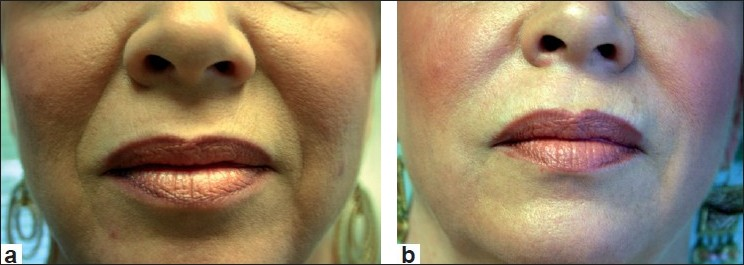 Figure 1 :Before treatment (a) and after treatment with Restylane (1.0 cc) to nasolabial folds (b)