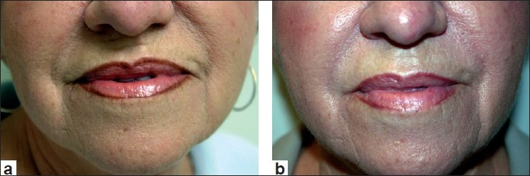 Figure 2 :Before treatment (a) and post treatment with Restylane (1.0 cc) to the nasolabial folds and marionettes lines (b)