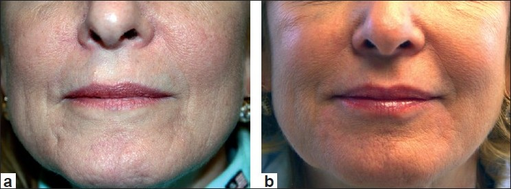 Figure 6 :Before treatment (a) and after treatment with Evolence (1.0 cc) to marionette lines, upper lip, vertical lines (b)