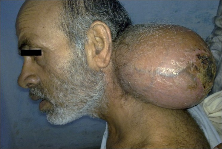 Figure 1 :Photograph of the patient showing giant lipoma at the posterior triangle
