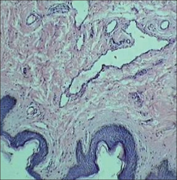Figure 2 :Histology of the papillary growth reveals ducts in dermis with normal overlying epidermis