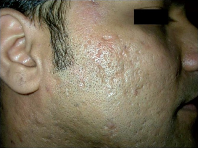 Figure 3 :Patient 1, before: showing multiple acne scars on the right cheek