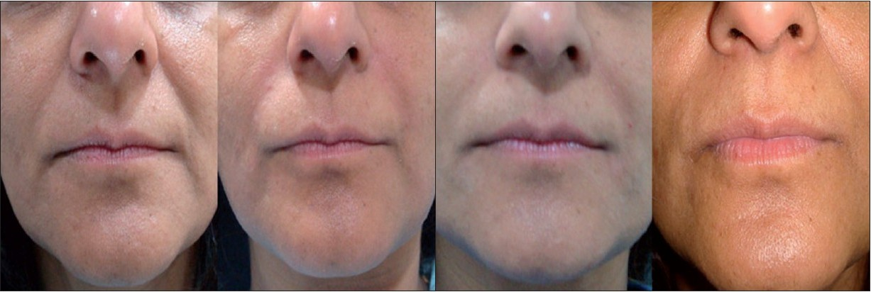 Perlane Nasolabial Folds