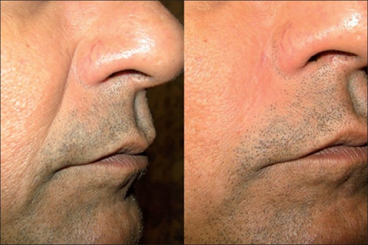 Figure 4: Moderate NL folds, 50 year old male; Before (left) and immediately after (right) Restylane