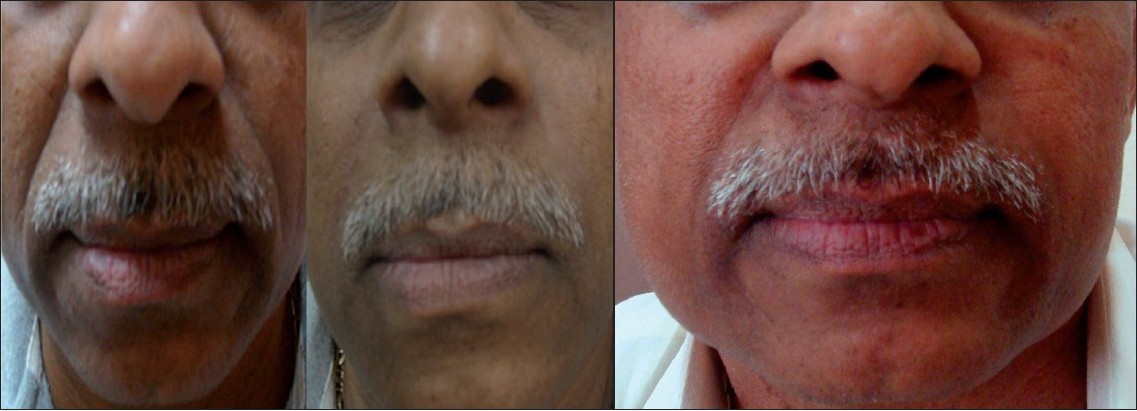 Figure 6a: Moderate NL folds, 58 year male; Before (left) and 3 months after (right) Restylane