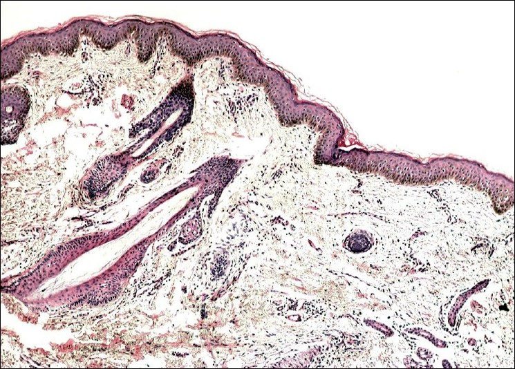 Figure 3: Atrophic hair follicles accompanied by ill-formed sebaceous units (H and E, ×400)