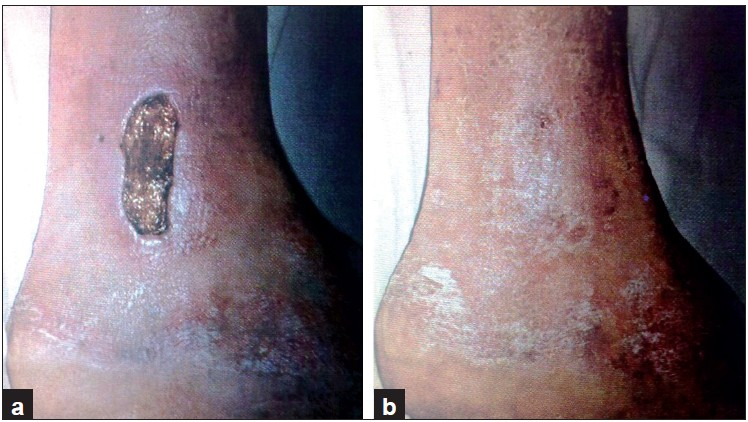 Figure 4: A deep wound on leg before (a) and after 28 days (b) of collagen dressing
