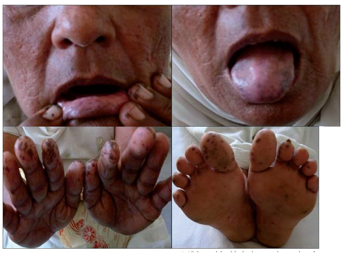 Laugier-Hunziker Syndrome Clinical Presentation: Physical ...