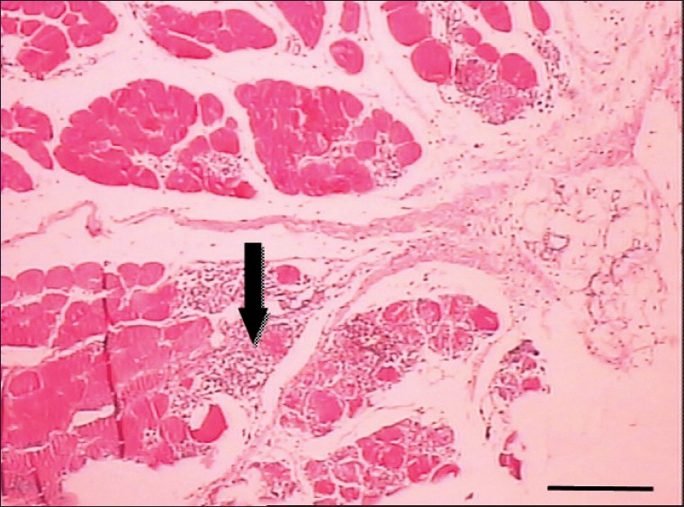 Structural Changes Of Fat Tissue After Nonaspirative