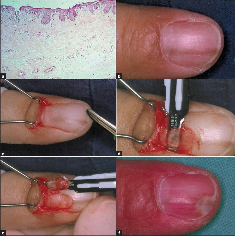 Advanced nail surgery Haneke E - J Cutan Aesthet Surg