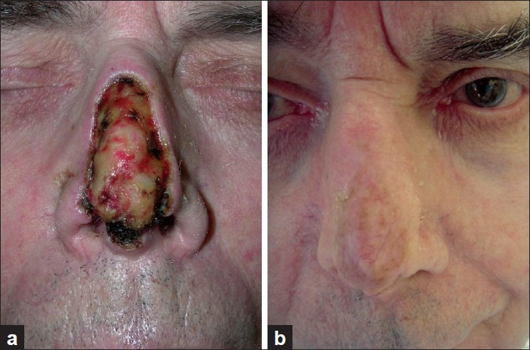 Figure 3: Patient 7. (a) After Mohs surgery of basal cell carcinoma, larger nasal defect with exposed cartilage; (b) One year after sandwich transplantation