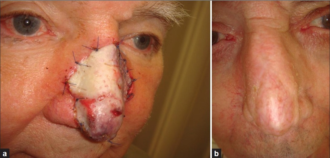 Figure 4: Patient 8. (a) Sandwich transplant after Mohs surgery for basal cell carcinoma of the nose. (b) About one year later