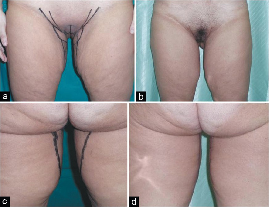 Figure 2: (a) Frontal projection of a 44-year-old woman who previously had undergone liposuction. A medial thigh lift with a vertical scar was performed. (b) Postoperative situation in frontal projection after 18 months. (c) Preoperative situation in back projection. (d) Postoperative situation in back projection after 18 months