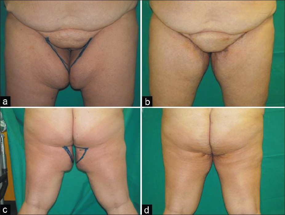 Figure 3: (a) Frontal projection of a 53-year-old woman who previously had undergone a gastric bypass surgery. A medial thigh lift with vertical and horizontal scars combined was performed. (b) Postoperative situation in frontal projection after 18 months. (c) Preoperative situation in back projection. (d) Postoperative situation in back projection after 18 months