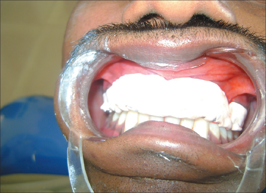 Figure 4: Dressing with periodontal pack
