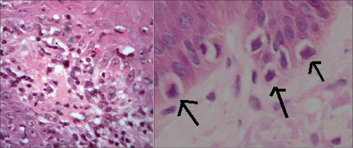Figure 2a: (H and E; ×200) showing vacuolar degeneration of basal layer with dense lumphomononuclear cells infiltrate in superficial dermis 