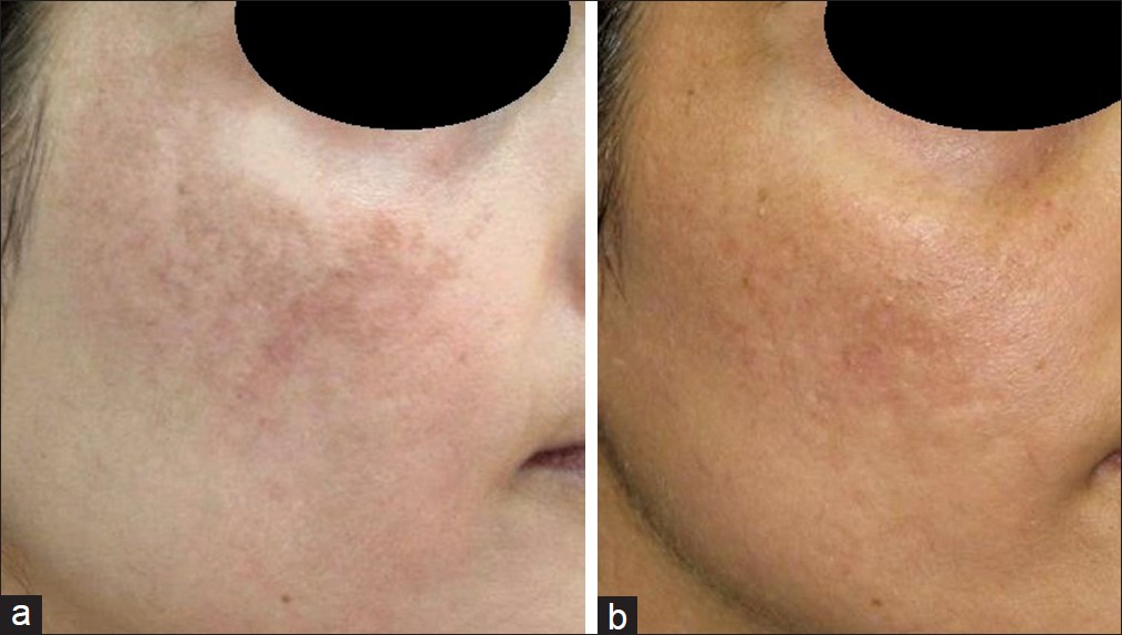 Lasers for treatment of melasma and post-inflammatory