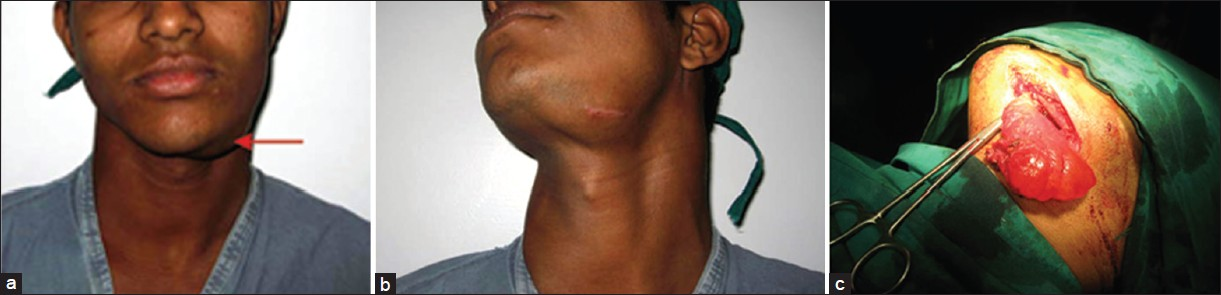 Figure 1: (a) Photomicrograph showing an irregular subcutaneous swelling in the left submandibular region measuring 6 × 5 × 3 cm with ill-defined margins. (b) Overlying skin was normal in color and temperature; however, a scar of previous surgical intervention was noted over the swelling. (c) Intraoperative photograph of the patient showing swelling with well-defined margins and extending inferiorly into the mid-cervical region, laterally up to angle of mandible and superiorly into the floor of mouth.