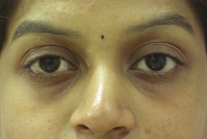 Figure 1: Tear trough deformity resulting in dark circles in a young Indian female