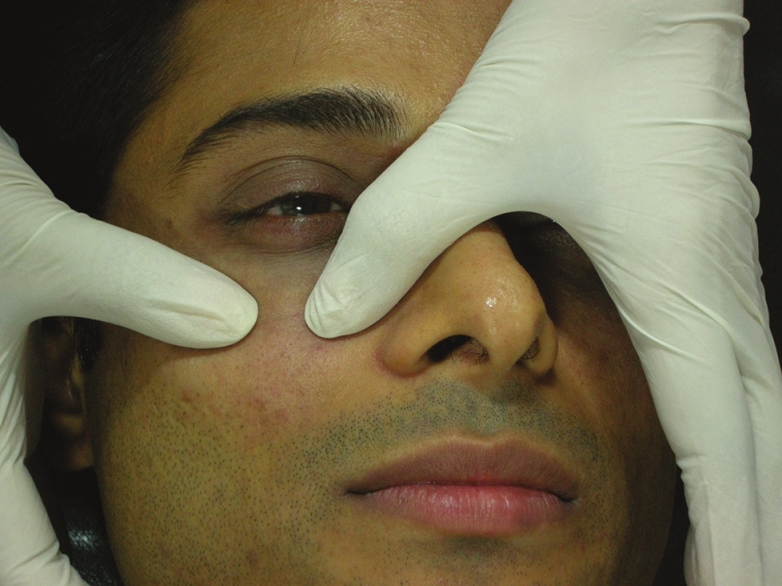 Dermal fillers for the treatment of tear trough deformity: A