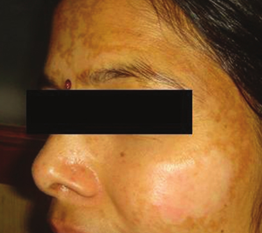 Figure 2: Hypopigmentation seen post-peel