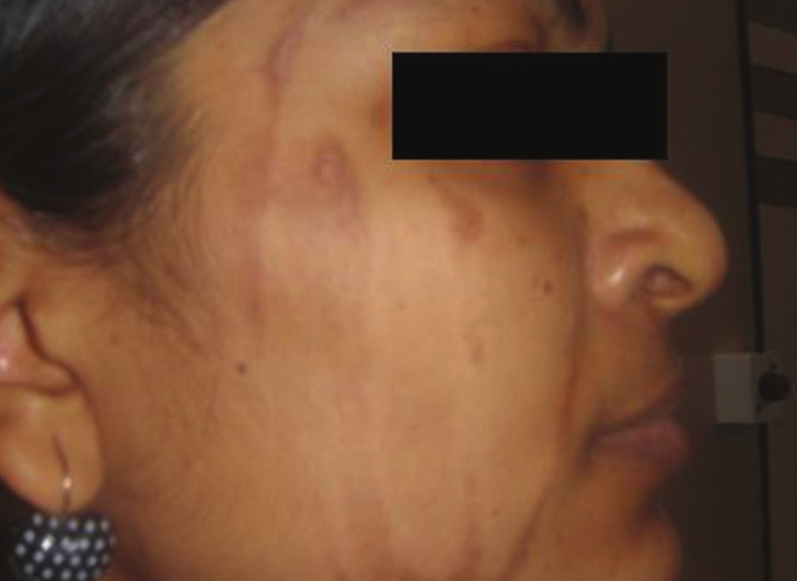 Figure 3: Hyperpigmentation post-peel