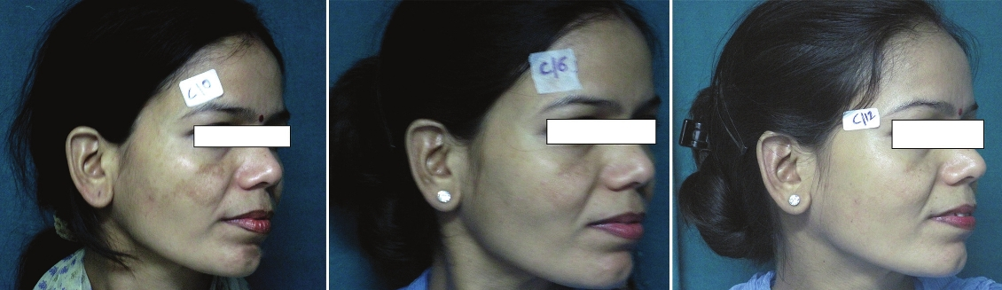 Figure 4: A patient of melasma treated with a combination of Q-Switched Nd: YAG Laser and 20% azelaic acid cream at (a) week 0 (MASI 10.6), (b) week 6 (MASI 5.2) and (c) week 12 (MASI 4.1)