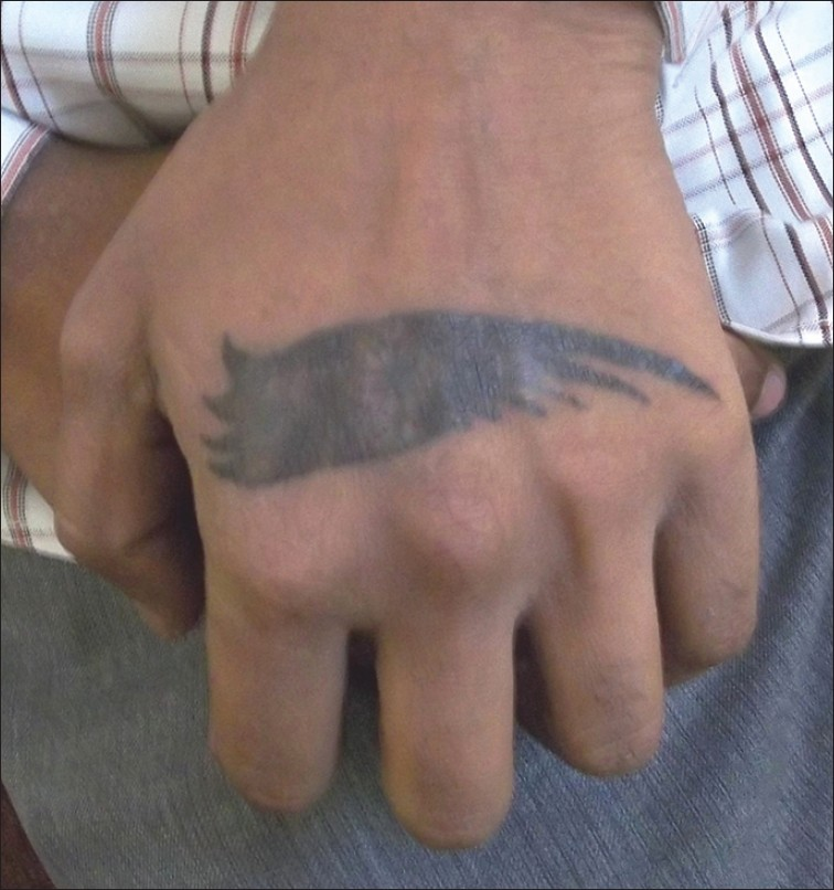 Figure 1: Black coloured tattoo on the dorsum of left hand