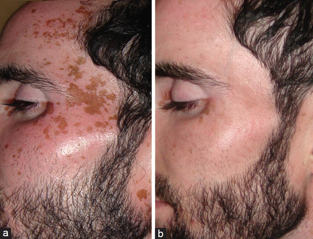 Figure 1: (a) Patchy residual pigmentation on face, (b) after treatment with Q-switched Nd:YAG laser