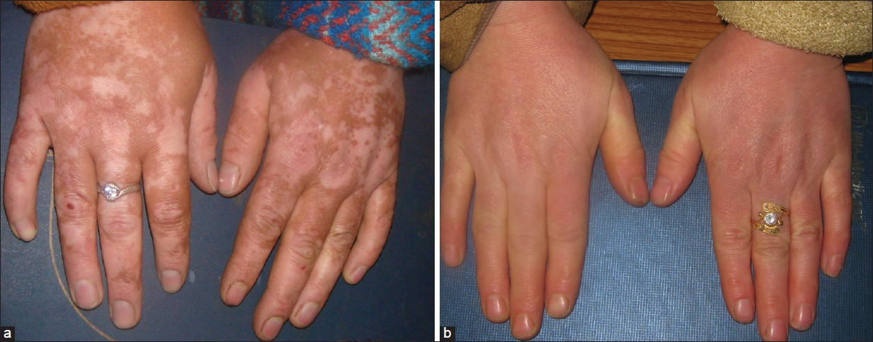 Figure 2: (a) Residual pigmentation on hands and (b) after 2 sessions of Q-switched Nd:YAG laser