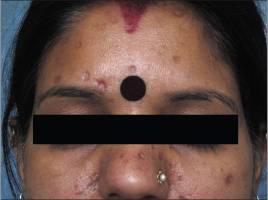 Journal Of Cutaneous And Aesthetic Surgery Jcas Table
