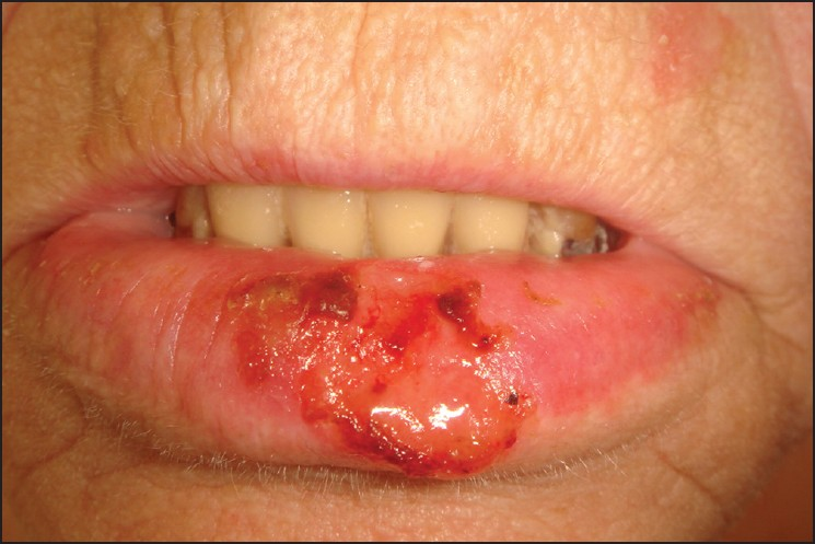 lower lip shave for squamous cell carcinoma reconstruction Figures lower lip lesion approximately 2 cm in greatest diameter  (lower lip  shave) histology  squamous cell carcinoma with actinic keratosis in the  adjacent  apart from vermilion reconstruction, the flap can be used.