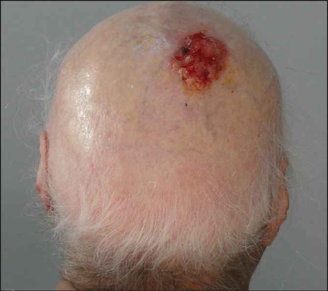 squamous cell carcinoma on the scalp after use of a wig