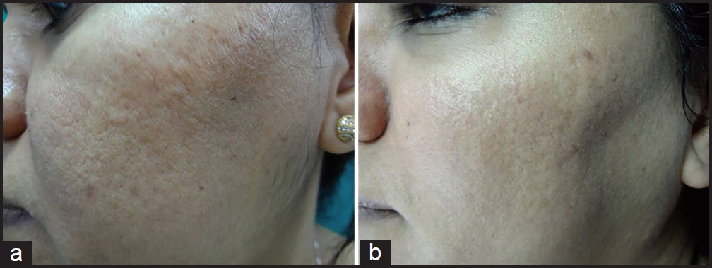 Figure 7: (a) Grade 2 acne scars; (b) Post-treatment patient had no scars