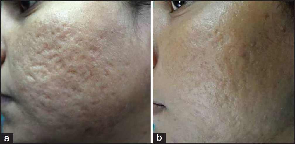 rolling acne scars before and after