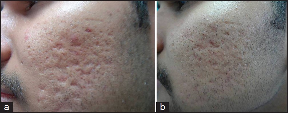 Figure 2: (a) Grade 4 acne scars; (b): Improvement in acne scars from Grade 4 to Grade 3 after treatment