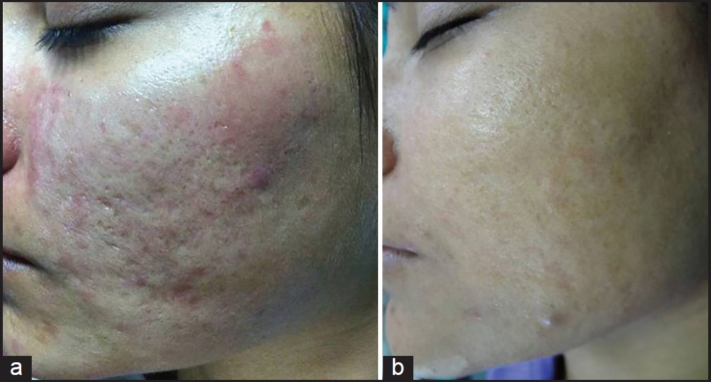 Figure 3: (a) Grade 3 acne scars; (b) Post-treatment patient had no scars