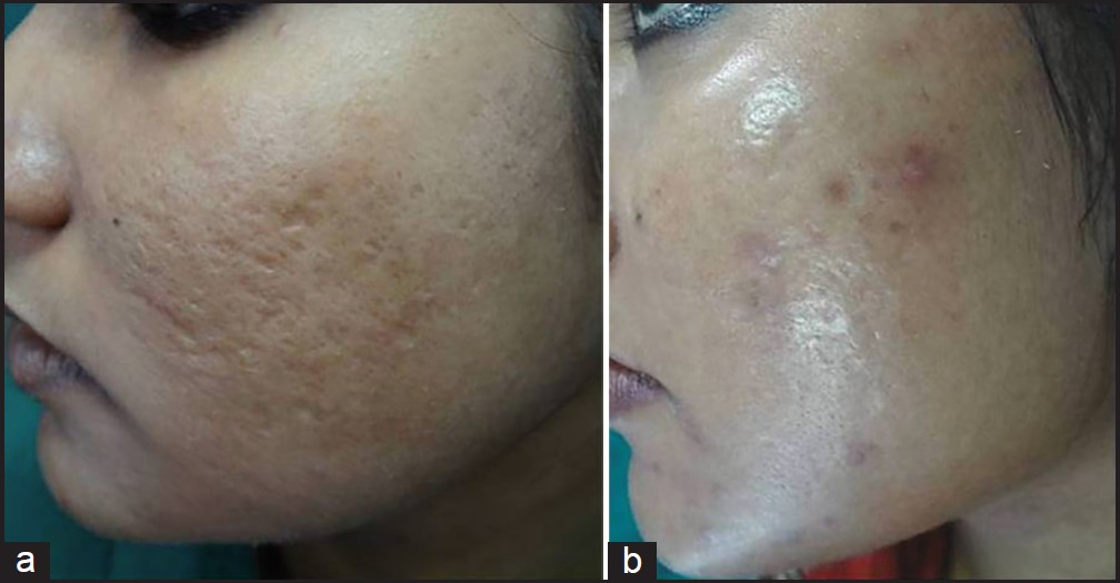Combination therapy in the management of atrophic acne scars Garg S