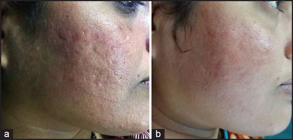 Combination Therapy In The Management Of Atrophic Acne Scars Garg