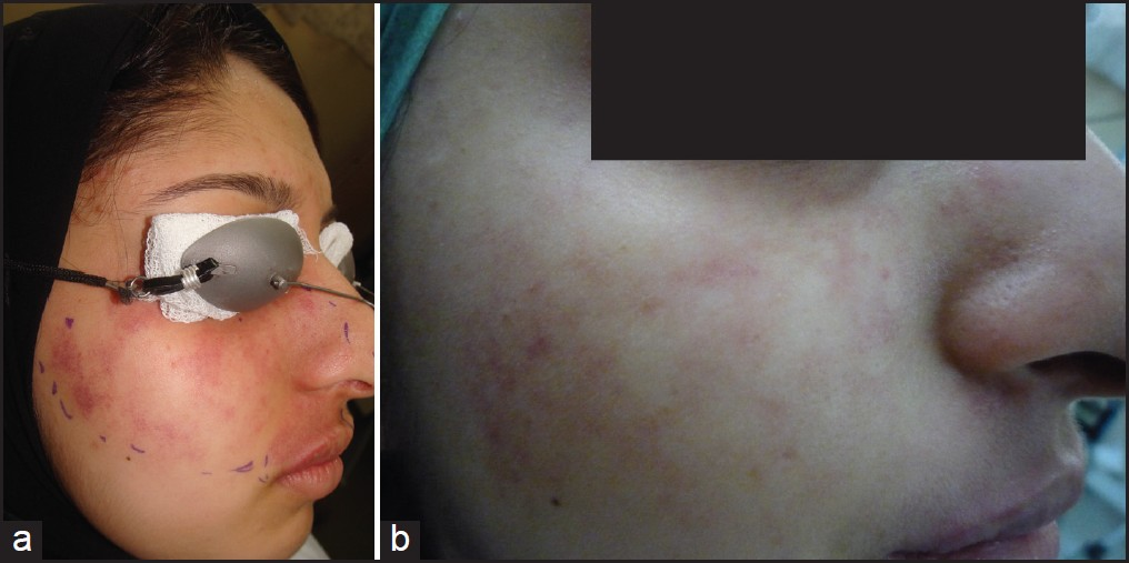 Figure 2: (a) Before treatment (b) After treatment
