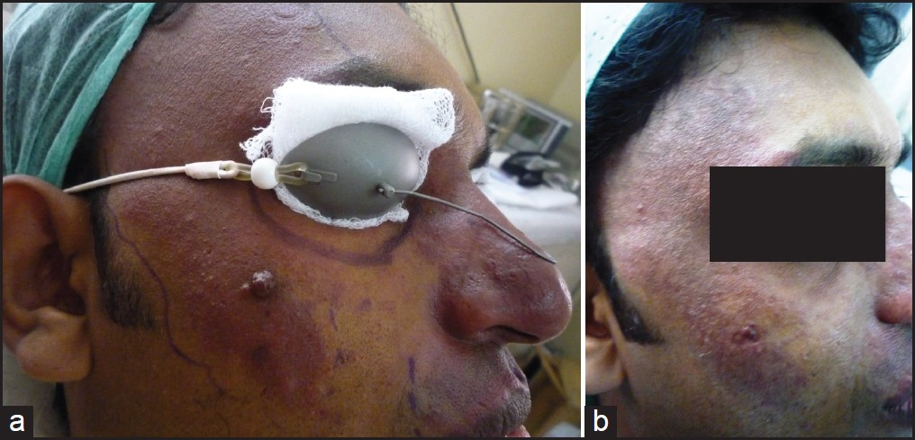 Figure 4: (a) Before treatment (b) After treatment