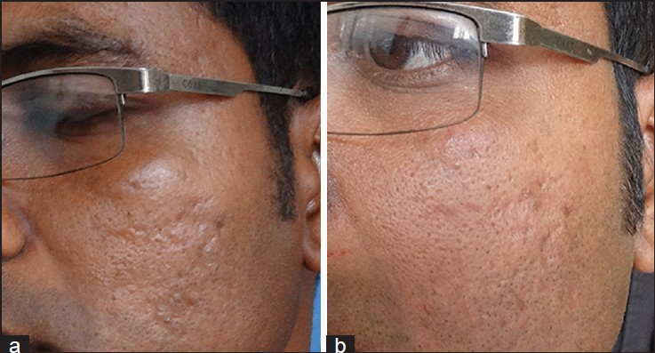 Figure 14: (a) Acne scars (b) Improvement in acne scars after two sessions of fat grafting done 1 month apart (Courtesy: Dr. Niti Khunger)