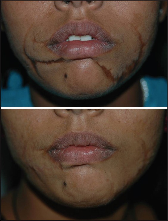 Figure 9: Multiple scars after repair of dog bite wound. Good improvement after multiple sessions of simple excision and W-plasty