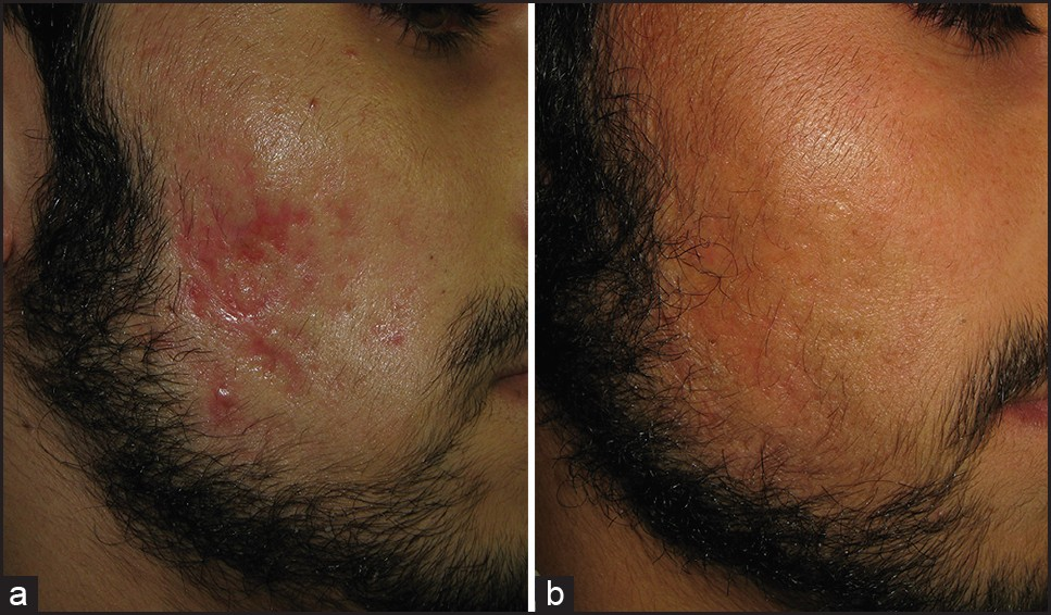 Figure 2: (a) Predominantly rolling scars (b) Excellent response after 3 sessions of fractional CO<sub>2</sub> laser resurfacing