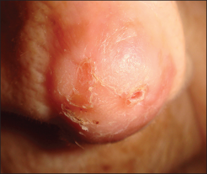 Basal cell carcinoma of the outer nose: Overview on surgical