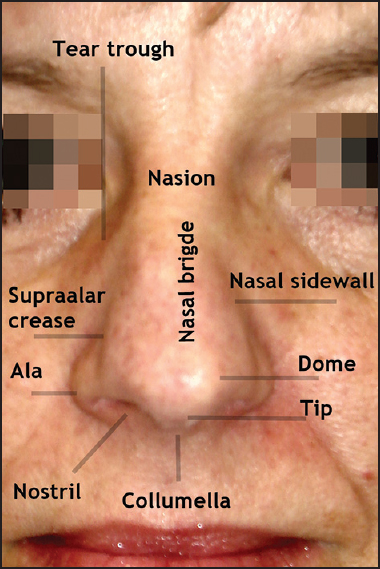 Figure 1: Gross anatomy of the nose